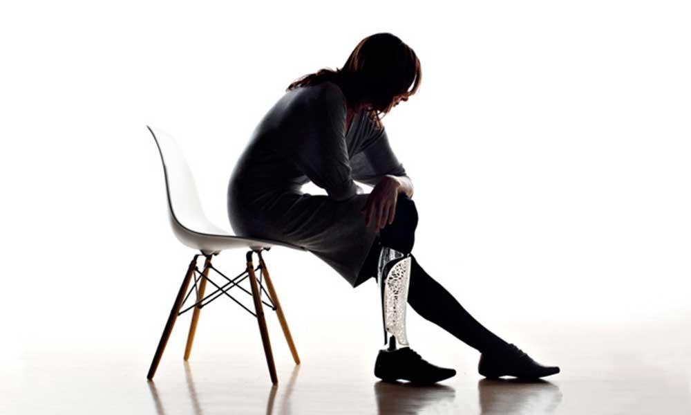 Sitting girl with prosthetic leg